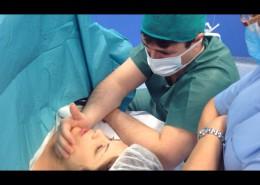 cesarea respetada | piel con piel Dona i Nen